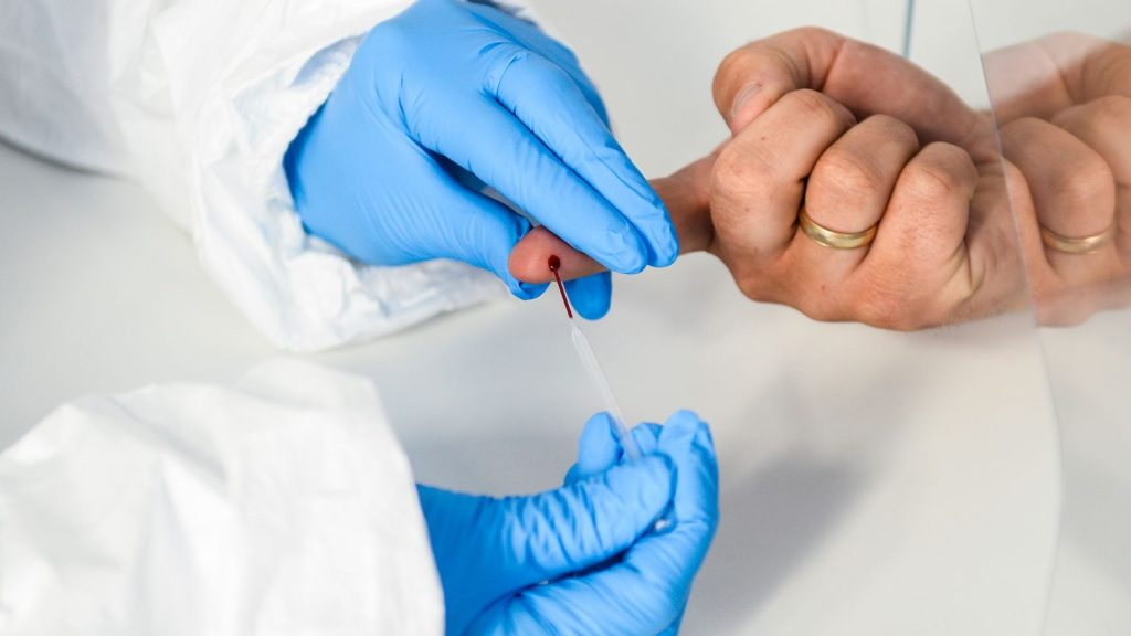 100% കൃത്യമായ കോവിഡ്-19 ആന്റിബോഡി പരിശോധനയുമായി സ്വിസ് കമ്പനി; യുകെയിൽ ഉപയോഗിക്കാൻ അനുമതി